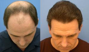saç ektirme 2