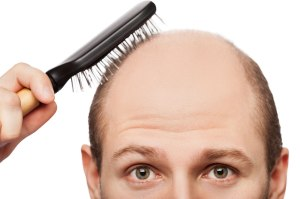 hairlosstreatment