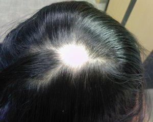 arganlife hairloss solutions