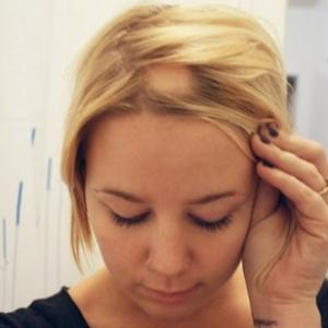 Nice pumpkin mature hairline mistaken for baldness Mills will