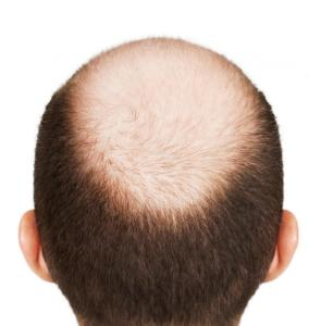 antihair loss