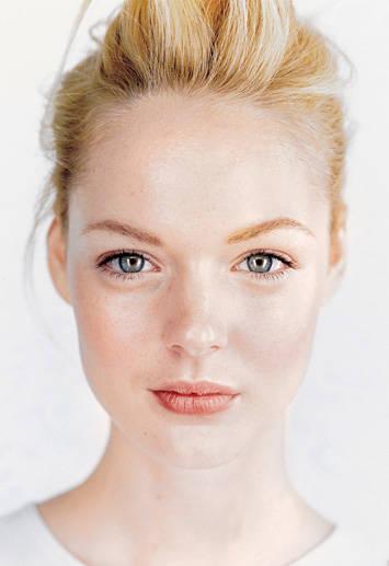 549ba804a06e5_-_how-to-cure-adult-acne-lg.jpg