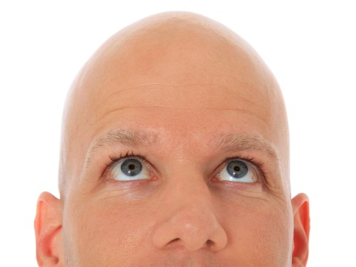 pg-8-baldness-alamy