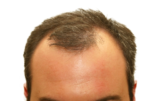 hair harm next 50 time of life disused conducive to men