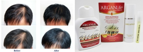 argan life products for men hair loss